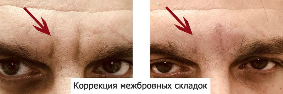 контурная планка до и после