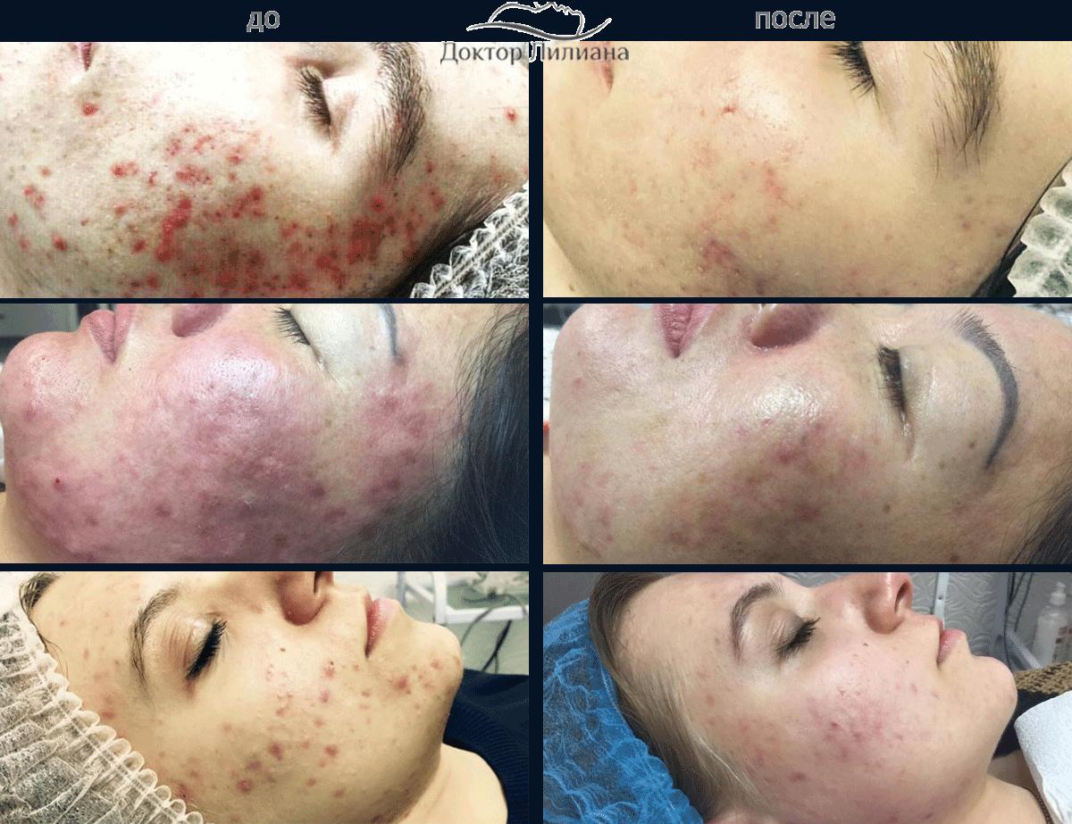 Эффект до и после лечения проблемной кожи