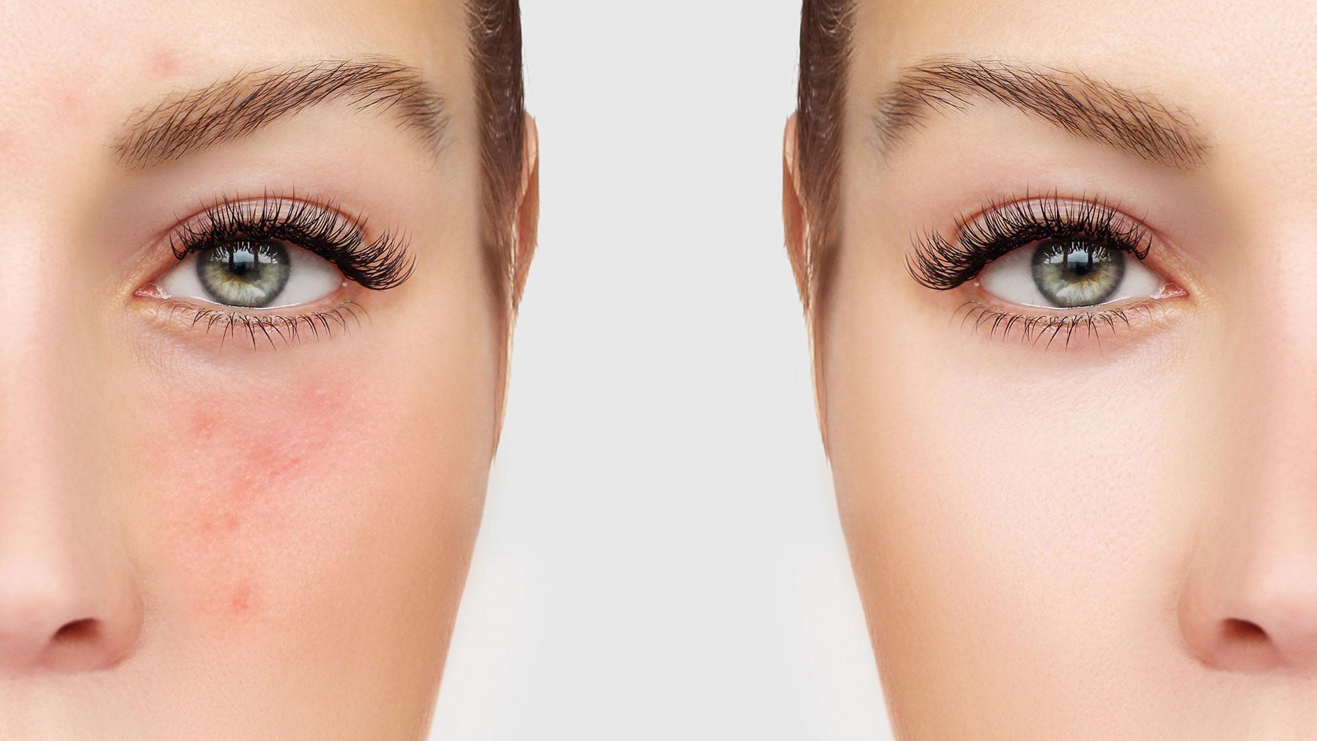 Лечение проблемной кожи