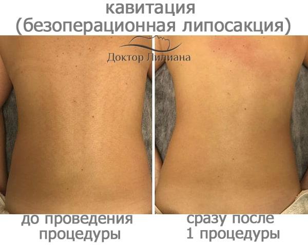 кавитация - липосакция без операции