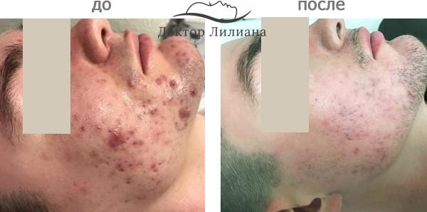 лечение проблемной кожи в Одессе