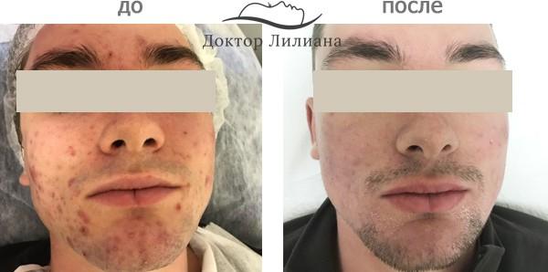 мехотерапия для проблемной кожи