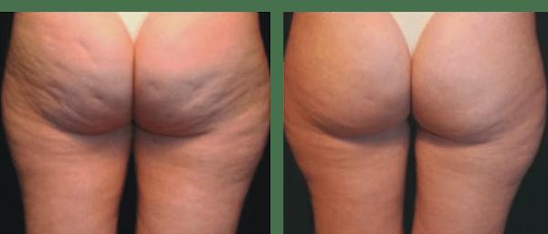 Вакуумно-роликовый антицеллюлитный массаж - эффект до и после