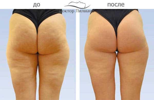 Вакуумно роликовый массаж - эффект до и после