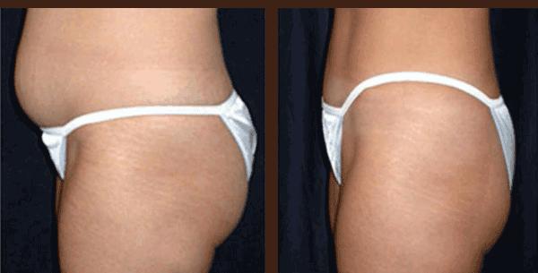 Безоперационная липосакция - эффект до и после