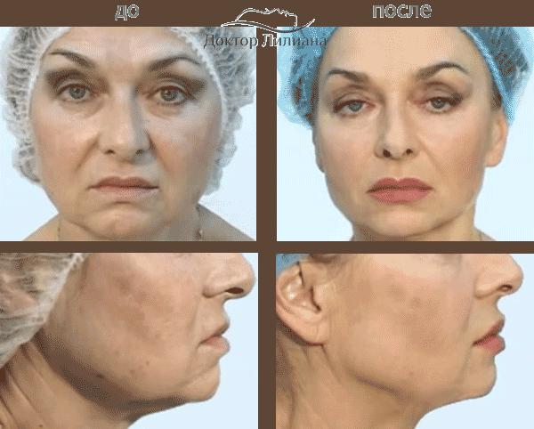 Эффект до и после процедуры мезонити
