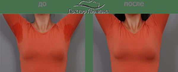 гипергидроз лечение цены в Одессе