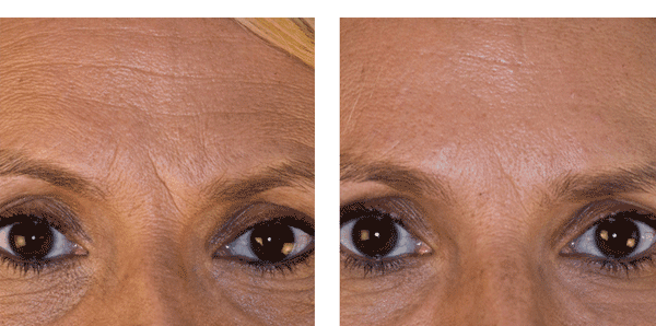 мезотерапия лица одесса
