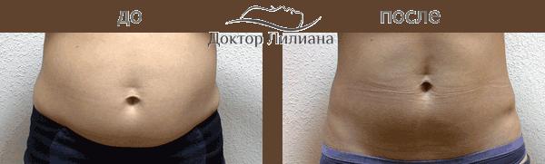 Прессотерапия - эффект до и после