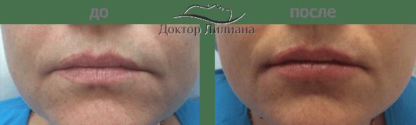 увеличение губ Одесса