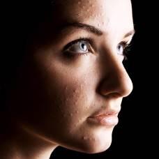 Вылечить проблемную кожу