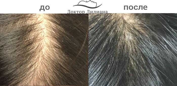 лечение выпадения волос Regenera
