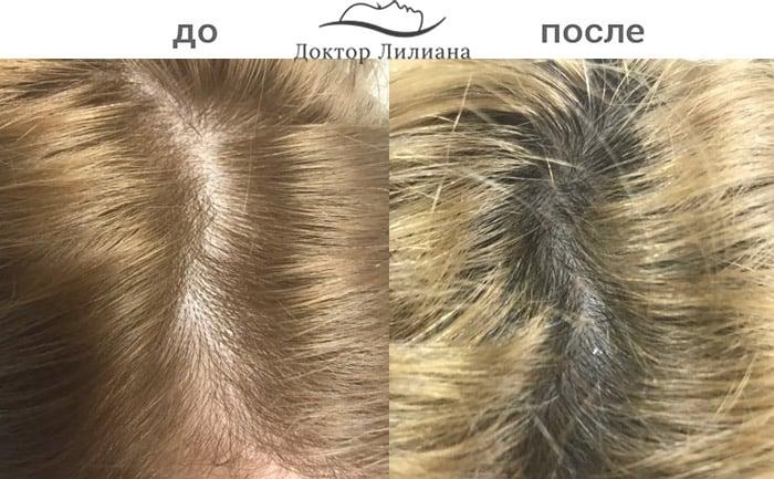 regenera-liliana-pinkovskaya1