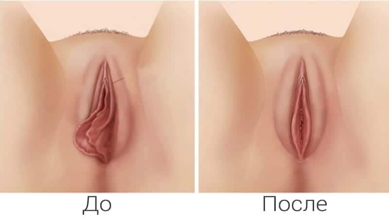 Интимная коррекция