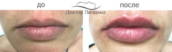 увеличить губы в Одессе