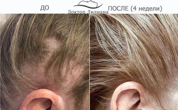 regenera-liliana-lechenie-obliseniya