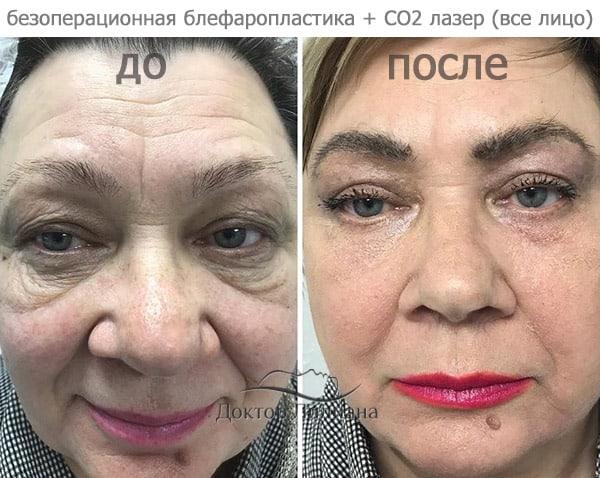 процедура CO2 лазера - омоложение лица